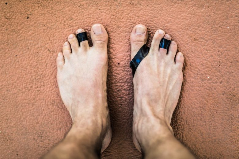 feet with blisters